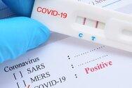 Πλαφόν στις τιμές των τεστ για τον Covid-19