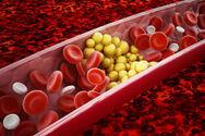 Υψηλή Χοληστερόλη - Αυτός είναι ο πραγματικός εχθρός