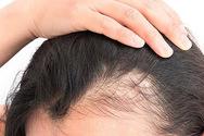 Τριχόπτωση: Η βιταμίνη που δυναμώνει τα μαλλιά