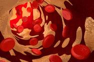 Χοληστερόλη - Η αλλαγή στα μάτια που προδίδει ότι έχει αυξηθεί