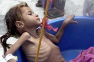 Υεμένη: 10.000 παιδιά έχουν σκοτωθεί ή τραυματιστεί από την αρχή του εμφυλίου