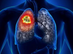 Keytruda - Το πρώτο φάρμακο που θεραπεύει τον καρκίνο γενετικά είναι γεγονός (pics+vids)