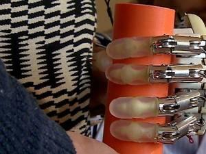 Το πρώτο βιονικό χέρι με αίσθηση αφής είναι γεγονός (video)