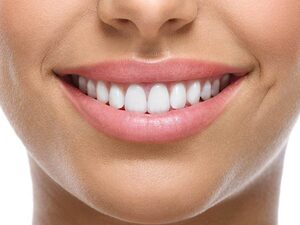 Tα τρόφιμα που «θαμπώνουν» το χαμόγελό σας