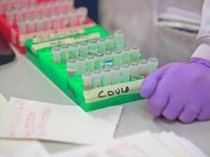Covid 19: Βρετανική μελέτη επιβεβαιώνει την αποτελεσματικότητα φαρμάκου αντισωμάτων