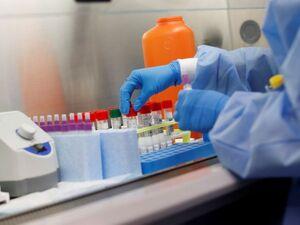 Δημόπουλος: Σε 5 χρόνια θα γνωρίζουμε αν το τεστ αίματος Galleri ανιχνεύει 50 είδη καρκίνου