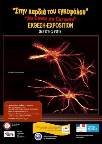 """Περιοδική Έκθεση """"Στην Καρδιά του εγκεφάλου"""" στο Μουσείο Επιστημών και Τεχνολογίας"""