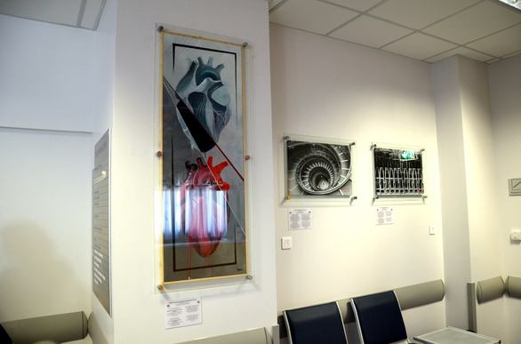 """Υπέροχη πρωτοβουλία - Πατρινοί καλλιτέχνες δημιούργησαν μια μίνι """"γκαλερί"""" στο νοσοκομείο του """"Αγίου Ανδρέα""""!"""