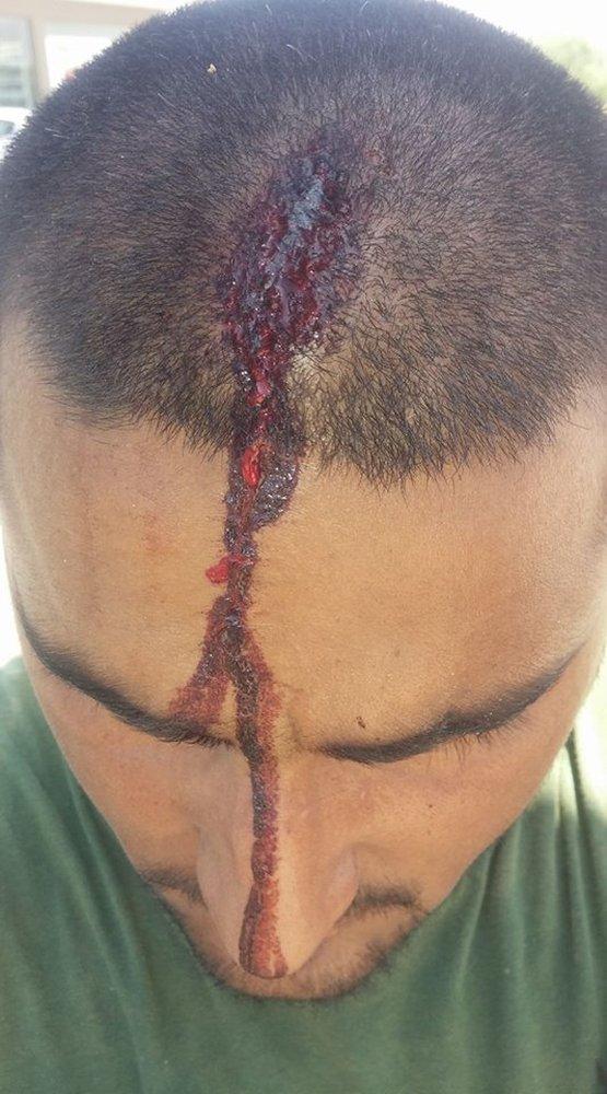 Δυτική Αχαΐα: Πακιστανός εργάτης γης πήγε να ζητήσει τα δεδουλευμένα του και του έσπασαν το κεφάλι!
