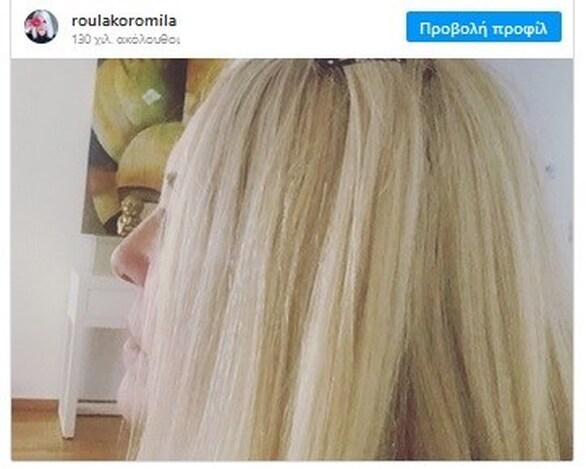 Η ανάρτηση που έκανε η Ρούλα Κορομηλά για την επίθεση με το βιτριόλι