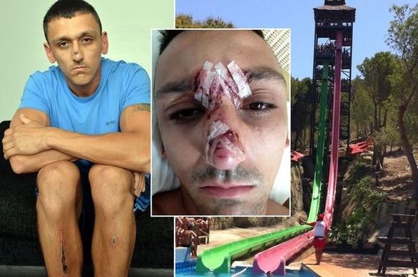 Σκληρές εικόνες - Τουρίστας κόντεψε να σκοτωθεί σε νεροτσουλήθρα!