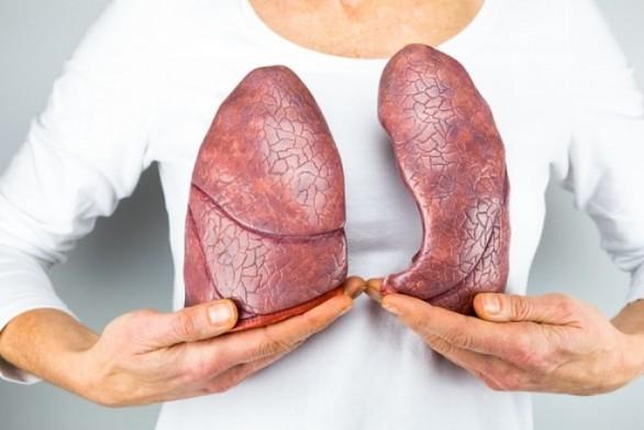 Ποιες είναι οι πρώτες ενδείξεις καρκίνου του πνεύμονα