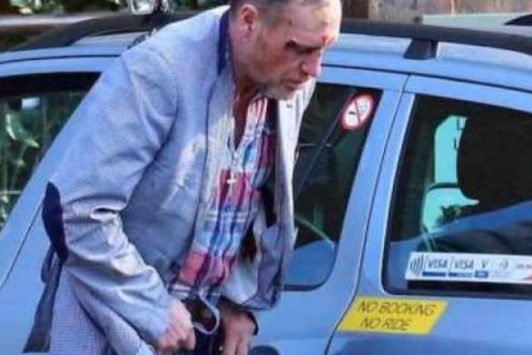 Πολ Γκασκόιν: Ματωμένος και μεθυσμένος στους δρόμους! (pics)