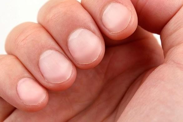 Τι σημαίνουν τα λευκά σημάδια στα νύχια μας (video)