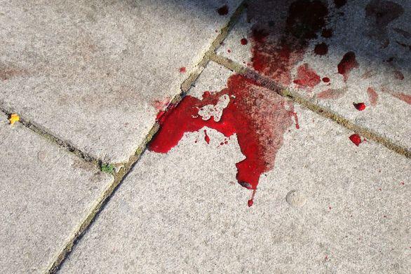 Πάτρα: Ανήλικοι μαχαιρώνουν για... ψύλλου πήδημα - 27χρονος κόντεψε να χάσει τη ζωή του από «καμάκι»