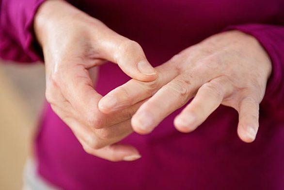 Σκληρόδερμα: Μια σπάνια και χρόνια ρευματική πάθηση