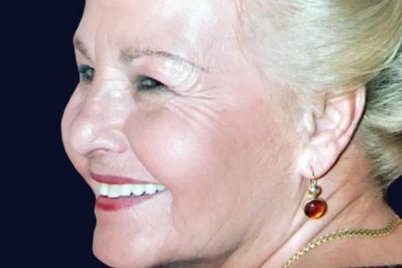 Θλίψη στην Πάτρα για την Μαρία Στόλλα