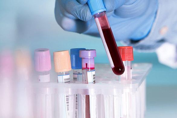 Τεστ αίματος θα εντοπίζει τον καρκίνο των ωοθηκών