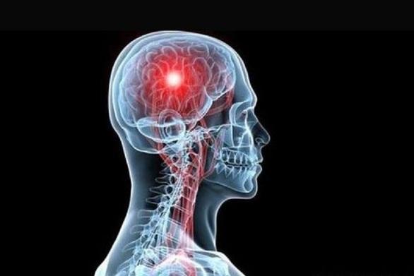 Εγκεφαλικό & Έμφραγμα: Οι λόγοι που ο κίνδυνος μεγαλώνει κατά τη διάρκεια των εορτών