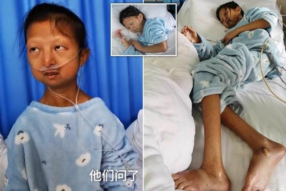 Κίνα - 20χρονη φοιτήτρια πέθανε από φτώχεια (video)