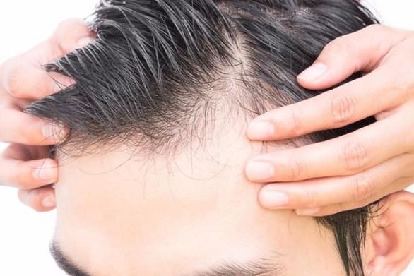 Ποιες είναι οι αιτίες απώλειας των μαλλιών (video)
