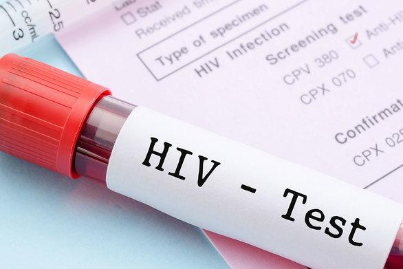 Επιβεβαιώθηκε η θεραπεία δεύτερου ασθενούς από τον HIV