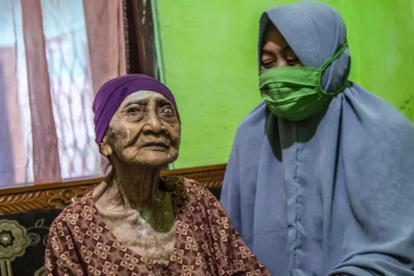 Ινδονησία - Κορωνοϊός: Γυναίκα 100 ετών νίκησε την νόσο