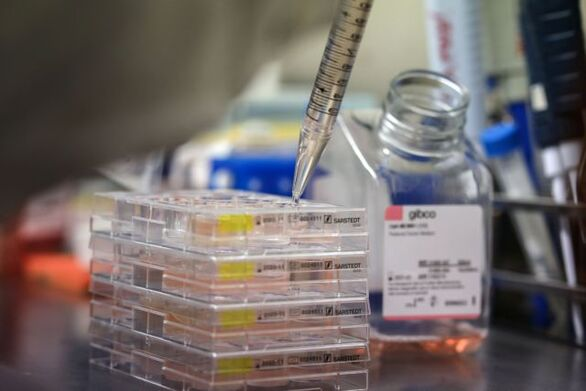 Νέα επιστημονικά δεδομένα: Πολυσυστηματική νόσος ο κορωνοϊός