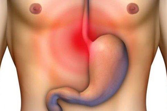 Καρκίνος στομάχου και οισοφάγου: Ο παράγοντας που αυξάνει τον κίνδυνο νόσου
