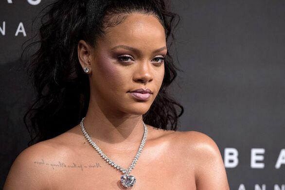 Με μώλωπες στο πρόσωπο εμφανίστηκε η Rihanna (φωτο)