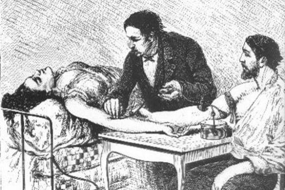 Σαν σήμερα 25 Σεπτεμβρίου πραγματοποιείται η πρώτη μετάγγιση ανθρώπινου αίματος