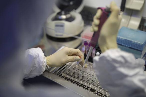 Koρωνοϊός: Έρευνα υποστηρίζει ότι ο ιός μπορεί να μειώσει κατά οκτώ μονάδες το IQ των ασθενών