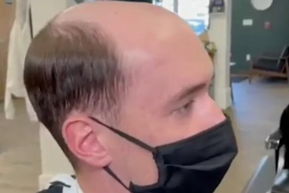 Επιδέξιος κουρέας «χαρίζει»... ολοκαίνουργια μαλλιά σε φαλακρούς άνδρες (video)