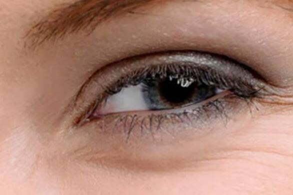 Οι κινήσεις που μειώνουν τις ρυτίδες στα μάτια