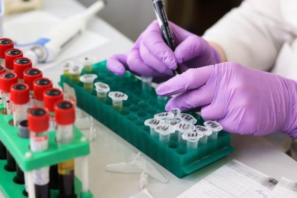 EMA: Αρχίζει την αξιολόγηση για χρήση ενός ανοσοκατασταλτικού φαρμάκου για τη θεραπεία ασθενών Covid-19 με πνευμονία