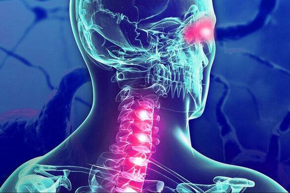 Πολλαπλή Σκλήρυνση: Οι λοιμώξεις που αυξάνουν τον κίνδυνο νόσου
